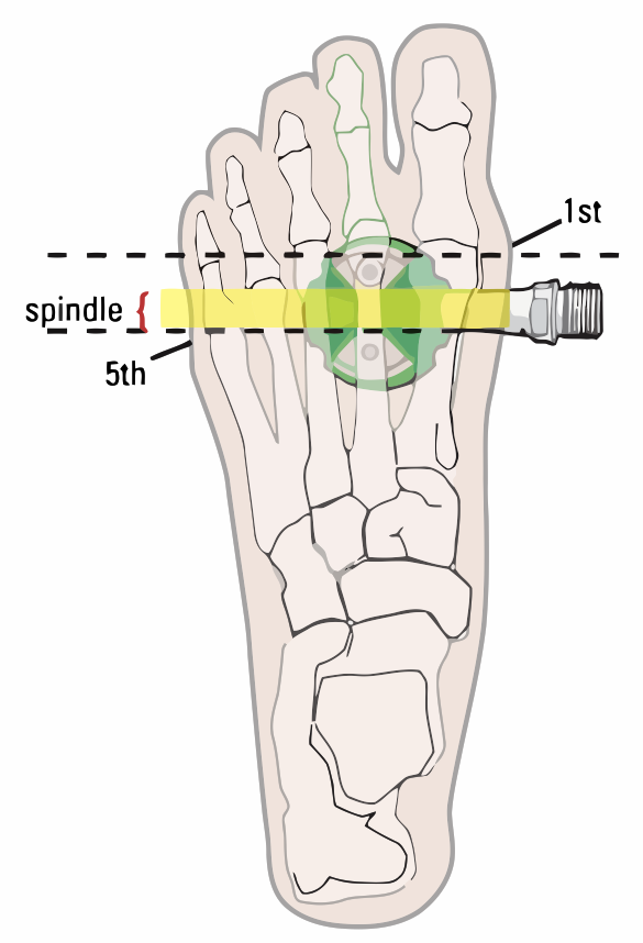 Spindle Foot Alignment
