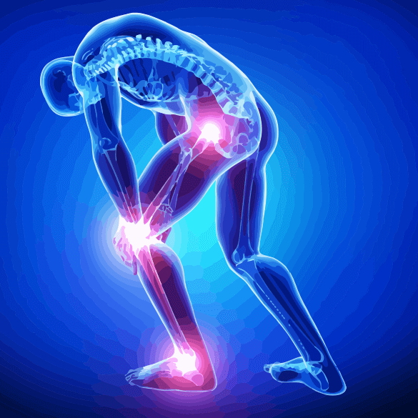 Hip, Knee and Ankle Joint Pain