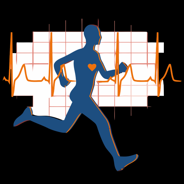 Runner Over-Layed on EKG